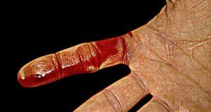 sangue mano